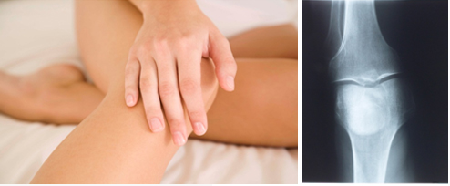 무릎관절염 (반월판연골손상)